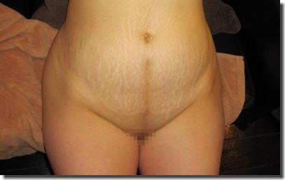 妊娠線あり!ママや熟女が断裂した肉割れお腹のエロ画像 ④