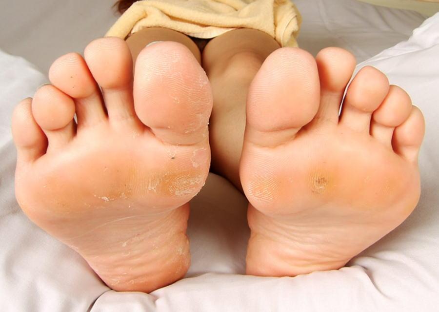 汚い 足裏 外反母趾 指毛 足フェチ 上級 エロ画像