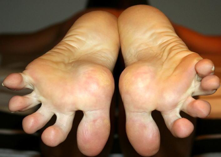 足フェチ勃起!足の指がぱっくり開いた足裏くぱぁなエロ画像