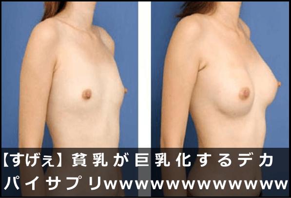 【すげぇ】貧乳が巨乳化するデカパイサプリwwwwwwww
