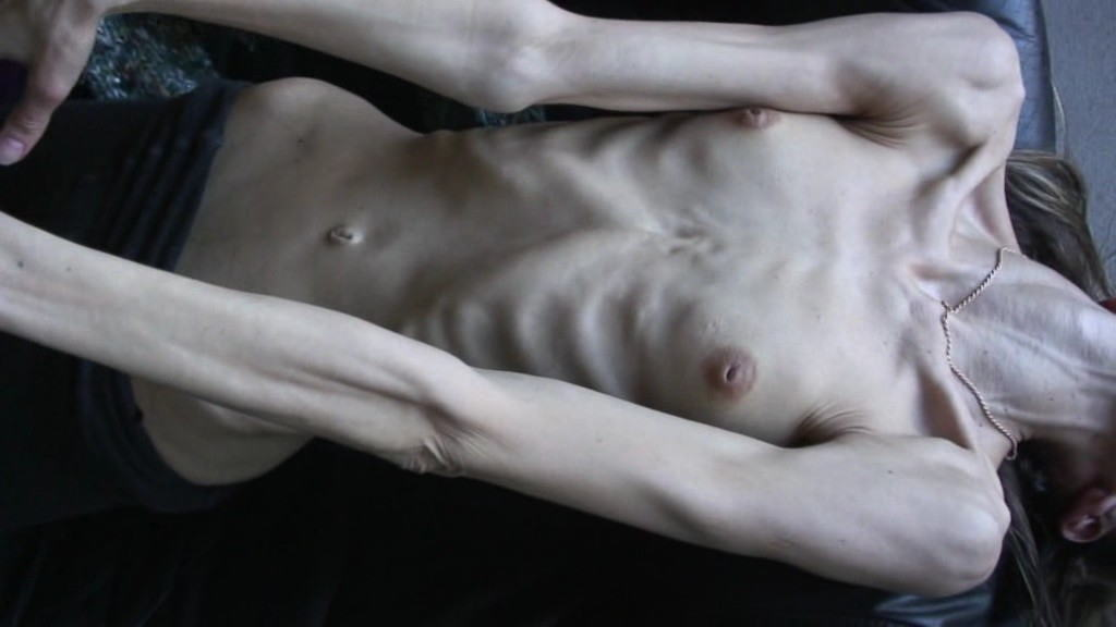 痩せ 鎖骨 フェチ ガリガリ 骨 エロ画像【29】