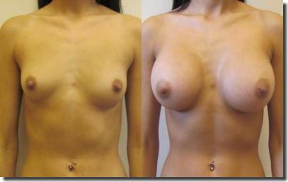 貧乳が巨乳に変身!豊胸手術のビフォーアフター比較画像 ①