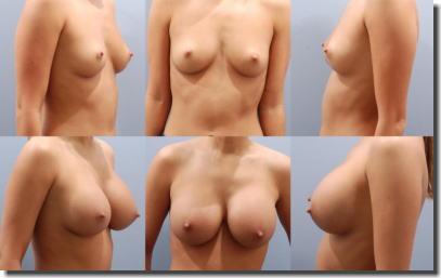 貧乳が巨乳に変身!豊胸手術のビフォーアフター比較画像 ②