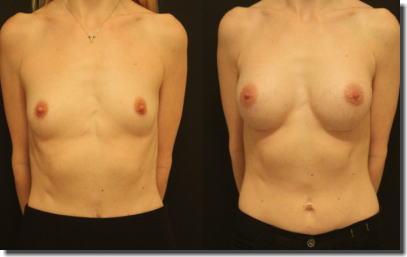 貧乳が巨乳に変身!豊胸手術のビフォーアフター比較画像 ③