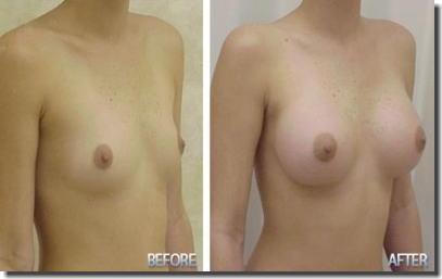貧乳が巨乳に変身!豊胸手術のビフォーアフター比較画像 ④