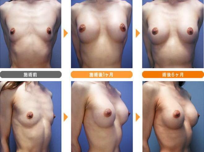 貧乳が巨乳に変身!豊胸手術のビフォーアフター比較画像