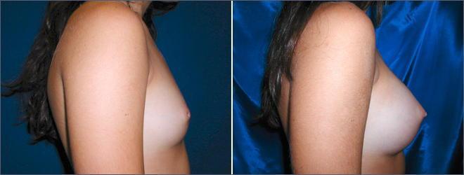 貧乳 巨乳 豊胸手術 ビフォーアフター 比較 エロ画像【32】